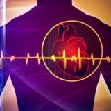 HEART SCANS, NOT HEART ATTACKS